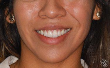 facettes-dentaires